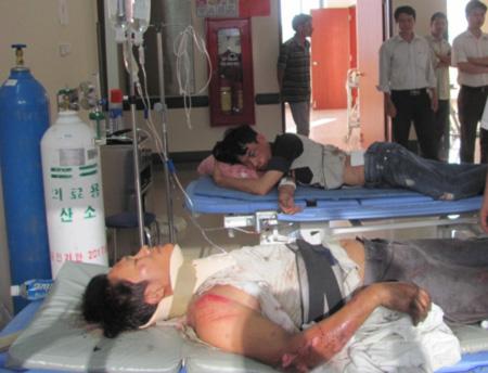 Tai nạn thảm khốc ở Huế: Tài xế container khai bị HIV giai đoạn 3
