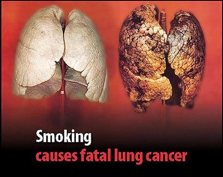 Hình ảnh Làm thế nào để bỏ được thuốc lá ? số 3
