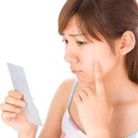 Lupus ban đỏ - Bệnh của nữ giới