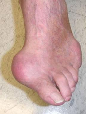 Hình ảnh Tơm trơng, một hướng mới trong điều trị gout số 1