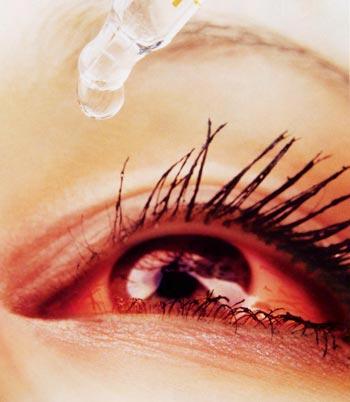 Hình ảnh Đối phó với bệnh đau mắt đỏ số 1