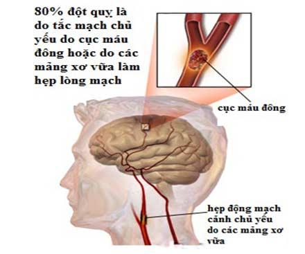 Hình Ảnh Phòng Ngừa Và Điều Trị Sau Tai Biến Mạch Máu Não Số 1