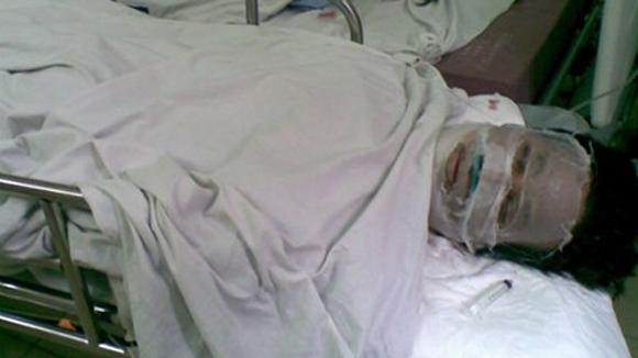 Hình ảnh Hải Phòng: Tẩm xăng thiêu sống 2 con, bố cũng tử vong số 1