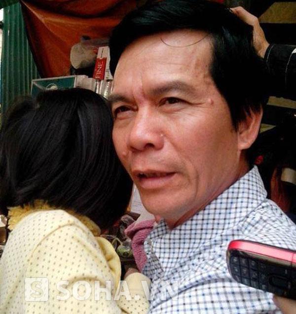 Chồng cũ nạn nhân bị em trai cắt lìa chân: