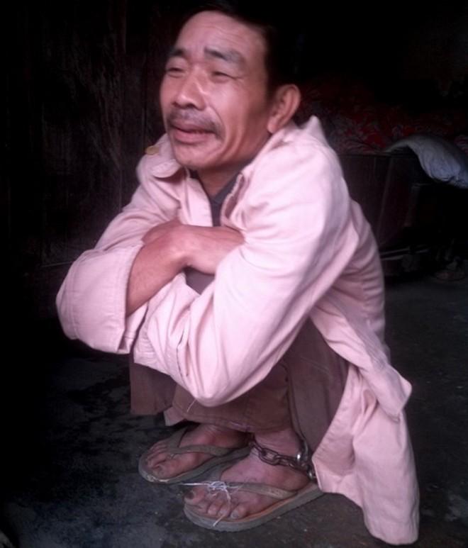 Vợ xích chồng vào đầu giường suốt 20 năm ở Thanh Hóa 7