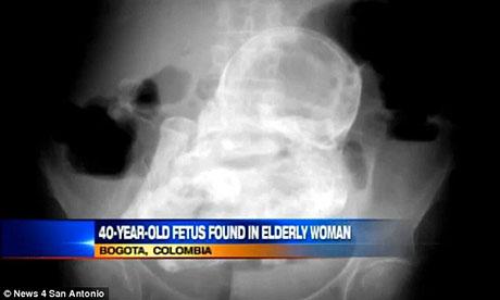 Hình ảnh Thai nhi hoá đá trong bụng cụ bà 84 tuổi suốt 44 năm số 1
