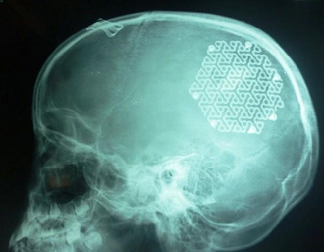 Lắp hộp sọ bằng kim loại cho bé gái 9 tuổi ở Quảng Bình 4