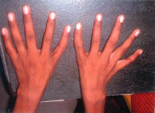 Cậu bé 10 tuổi có các ngón tay dài bằng nhau