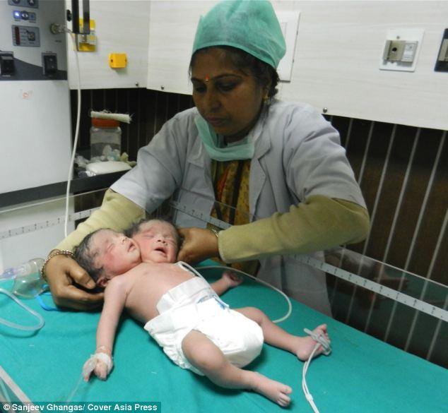 Clip: Bé sơ sinh đáng thương có hai đầu 6