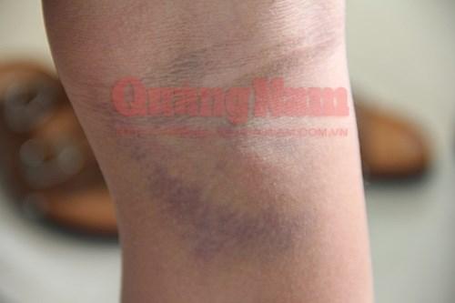 Thầy hiệu phó đánh học sinh bầm tím chân phải nhập viện 5