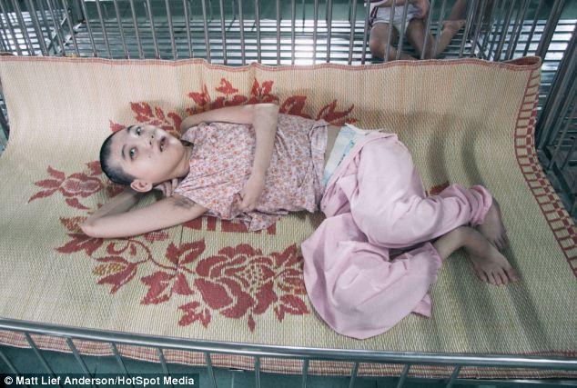 Trẻ em da cam Việt Nam qua ống kính nhiếp ảnh gia người Mỹ 4