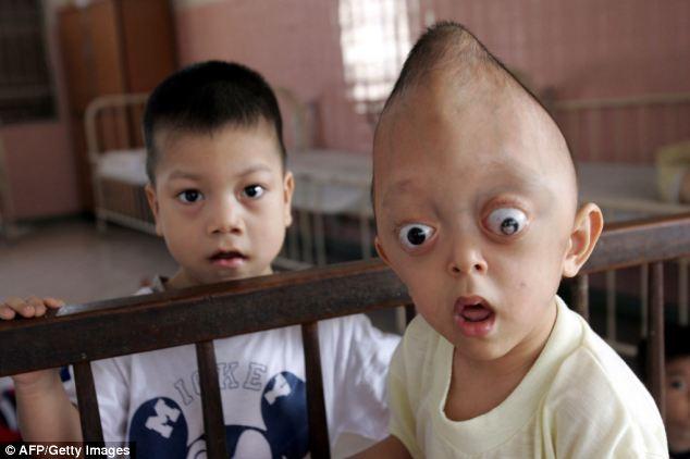 Trẻ em da cam Việt Nam qua ống kính nhiếp ảnh gia người Mỹ 6