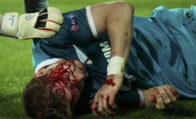Cầu thủ Zenit bất tỉnh trên sân với khuôn mặt đẫm máu 5