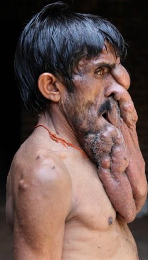 Cận cảnh khuôn mặt biến dạng vì khối u nặng 4kg 6