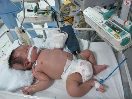Sự thật về bé hoại tử cả bàn tay sau tiêm lao 4