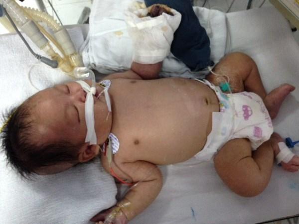 Bé sơ sinh bị hoại tử tay do tiêm Vacin: Có thể phải tháo khớp ngón tay 5
