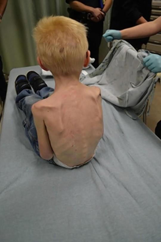 Bố và mẹ kế bạo hành, nhốt cậu bé 5 tuổi trong tủ quần áo 6