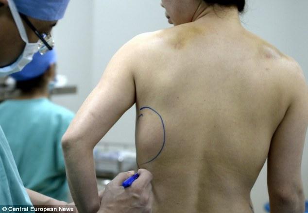 Kinh dị mô nâng ngực tụt xuống bụng và lưng 6
