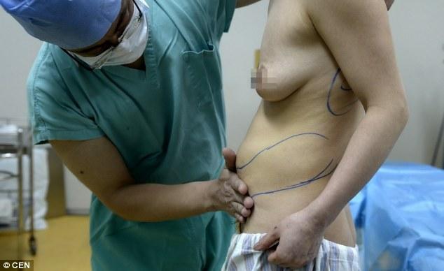 Kinh dị mô nâng ngực tụt xuống bụng và lưng 8