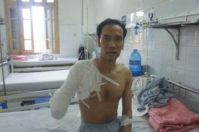 Bị cưa mất tay vì ngã vào bếp than khi lên cơn động kinh 4