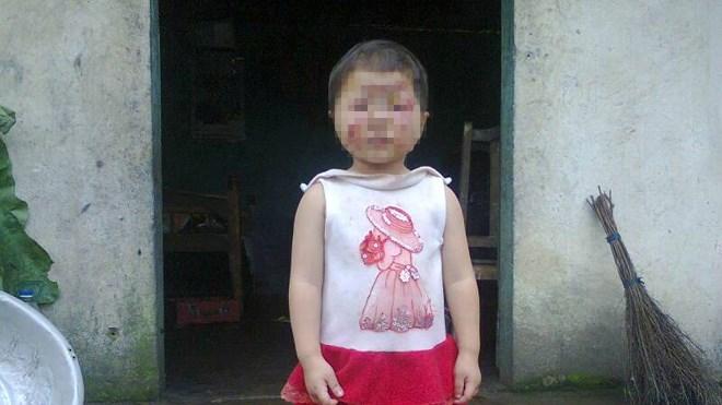 Bé gái 2 tuổi cháy xém mặt, không có tiền đi viện 4