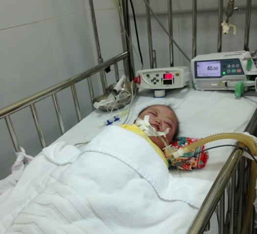 Cảm động những thầy thuốc suốt đêm bóp bóng giúp các bé mắc bệnh sởi duy trì sự sống 6