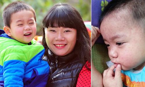 Dịch sởi:  Lo tự cứu con mình đi! 4