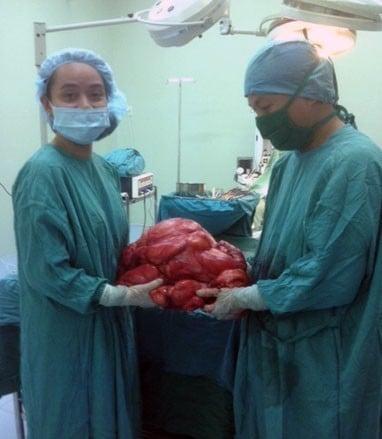 Phẫu thuật lấy khối u 11 kg trong bụng bệnh nhân 4