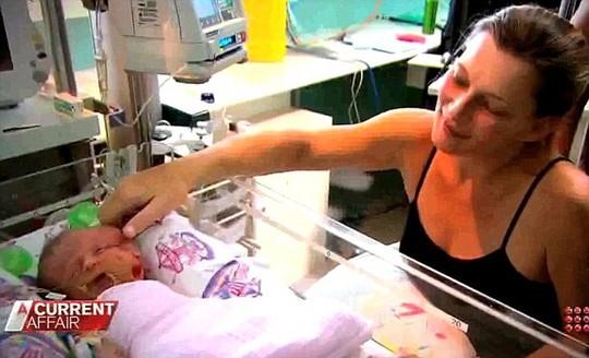 Bé sơ sinh có 2 mặt đã qua đời sau 19 ngày đến thế giới 7