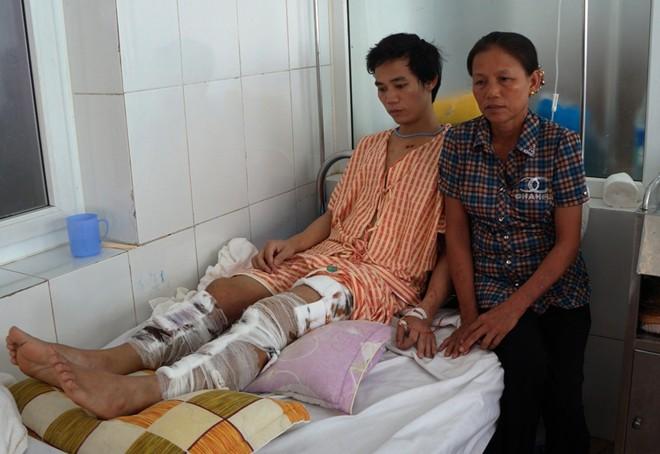 Tai nạn thảm khốc ở Thái Lan: Phút trườn ra khỏi xe phát nổ với cái chân bị gãy làm 3 7