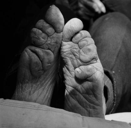 Kinh hoàng tục lệ bó chân phụ nữ ở Trung Quốc 6