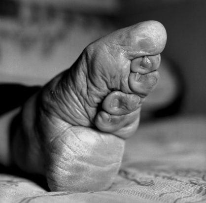 Kinh hoàng tục lệ bó chân phụ nữ ở Trung Quốc 7