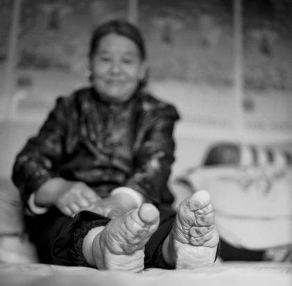 Kinh hoàng tục lệ bó chân phụ nữ ở Trung Quốc 8