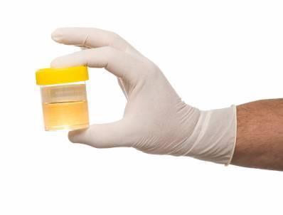 Phát hiện những bệnh nguy hiểm qua nước tiểu hàng ngày 5
