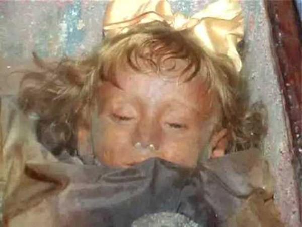 Nguyên nhân xác ướp bé gái 3 tuổi