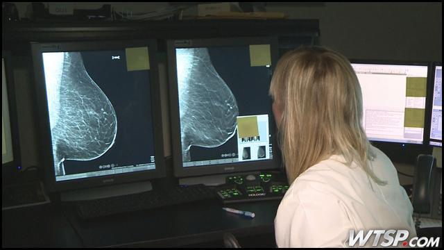 Phát hiện ung thư vú sớm nhất bằng cách chụp X-quang 3D 4