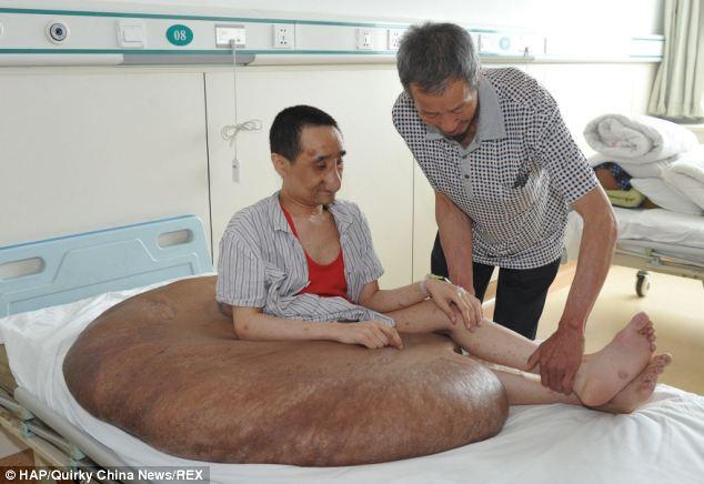 Cận cảnh ca phẫu thuật cắt bỏ khối u lớn nhất thế giới 5