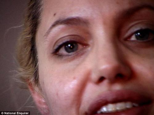 Sốc với cánh tay đầy vết chích của nữ diễn viên Hollywood Angelina Jolie 10