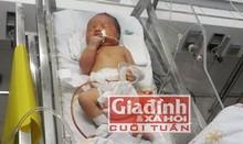 Cháu bé sinh ra không có hậu môn, bộ phận sinh dục 5