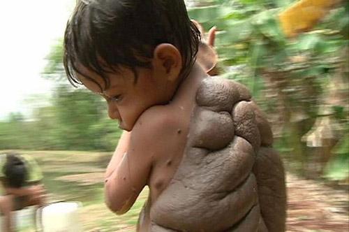 Cậu bé mang nốt ruồi khổng lồ ác tính như mai rùa  5