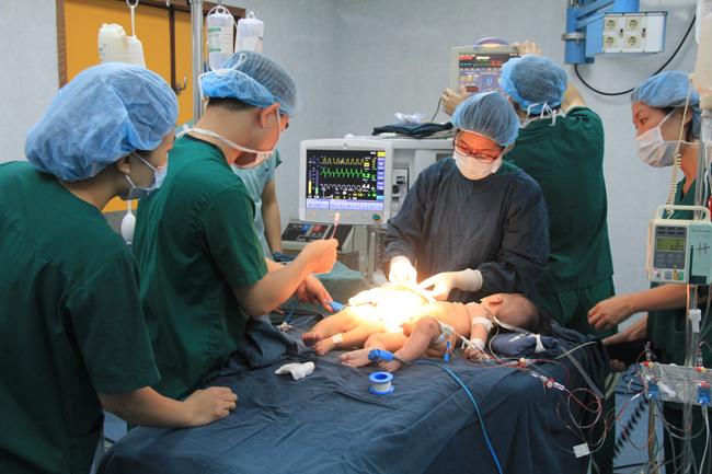 Cặp song sinh dính liền phần bụng được phẫu thuật thành công 7