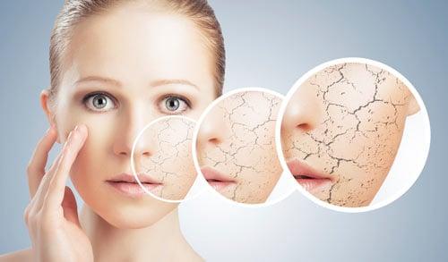 Những bệnh gây ảnh hưởng nghiêm trọng tới làn da của bạn