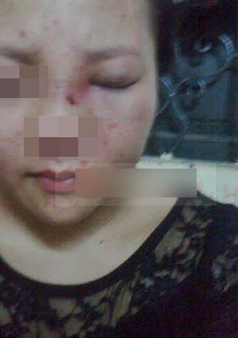 Cộng đồng mạng bức xúc chồng đánh vợ sưng tím mặt đăng chiến tích lên Facebook 10