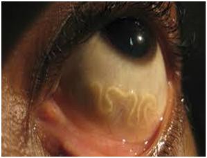 Ăn nem thính bị sán lợn làm tổ trong não 7