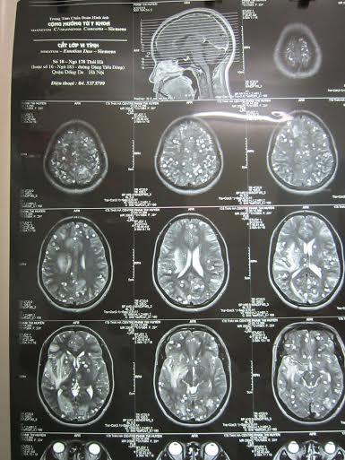 Ăn nem thính bị sán lợn làm tổ trong não 6