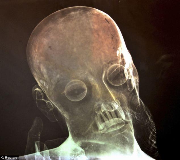 Phát hiện tượng cổ 300 năm tuổi có răng thật 4