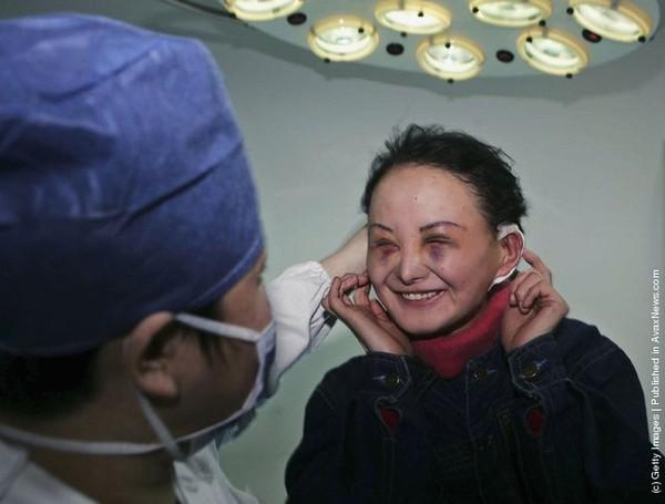 Cận cảnh những gương mặt hoá...quỷ sau phẫu thuật thẩm mỹ 8