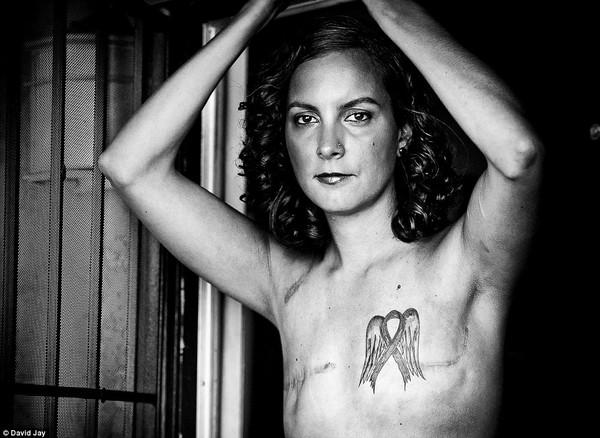 Bộ ảnh của bệnh nhân ung thư vú gây xúc động 6