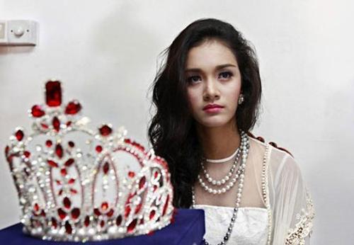 Hoa hậu châu Á Thái Bình Dương lộ ảnh phẫu thuật 5