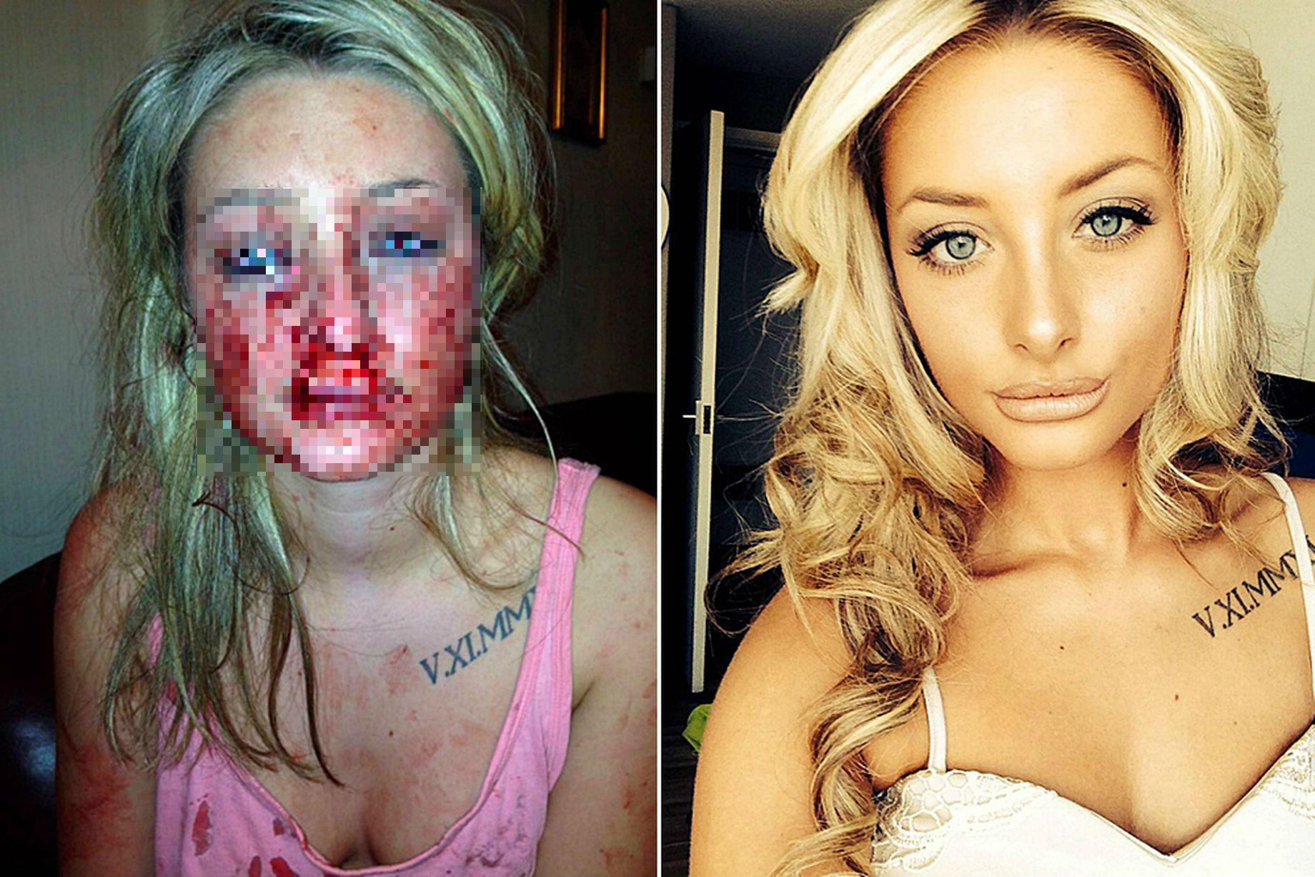 Cô gái 18 tuổi bị bạn trai cắn nát môi khi đang hôn 6